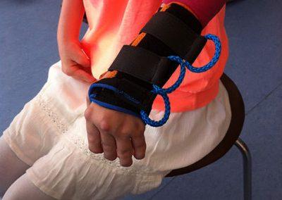 Orthese individuell bei Rheuma mit Spezialverschlüssen